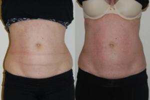 Criolipólise antes e depois: Quadril