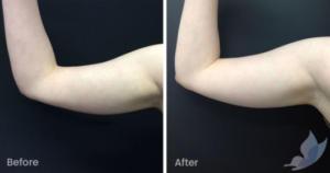 Criolipólise antes e depois: Braço