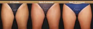 Criolipólise antes e depois: Interior das coxas