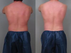 Criolipólise antes e depois: Em homem