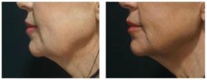 Criolipólise antes e depois: Papada