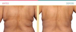 Criolipólise antes e depois: Costas
