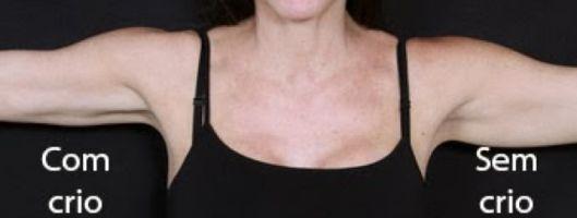 antes e depois da criolipólise