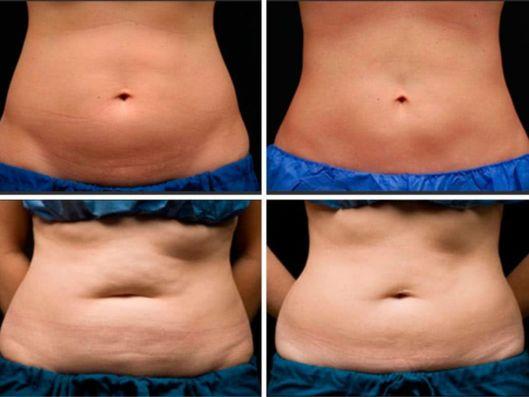 Antes e depois da criolipólise na barriga