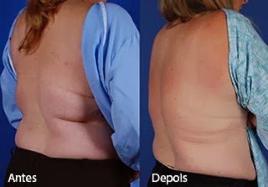 antes e depois da criolipólise nas costas