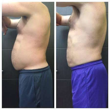 Criolipolise na barriga para homem antes e depois