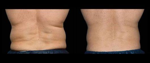 Criolipolise nas costas de homem antes e depois