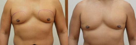 Resultado antes e depois de criolipólise para lipomastia