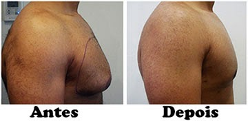 criolipolise lipomastia antes e depois