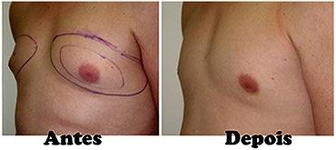 criolipolise para homens resultados lipomastia