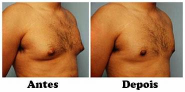 criolipolise resultados lipomastia homem
